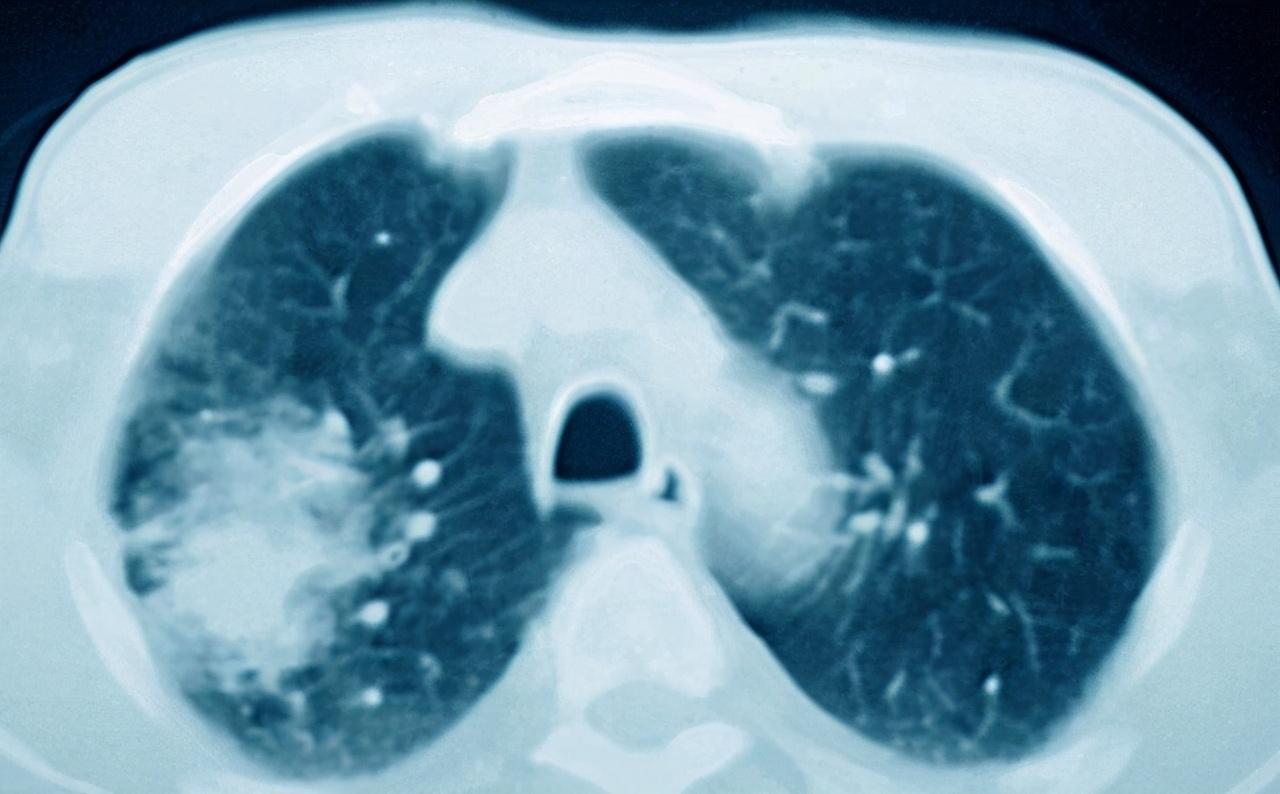 肺积水的治疗,主要是什么原因造成的?如何治疗呢?