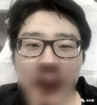"""""""中国病毒"""",""""滚出这里""""!37岁中国大学讲师在英被袭击"""