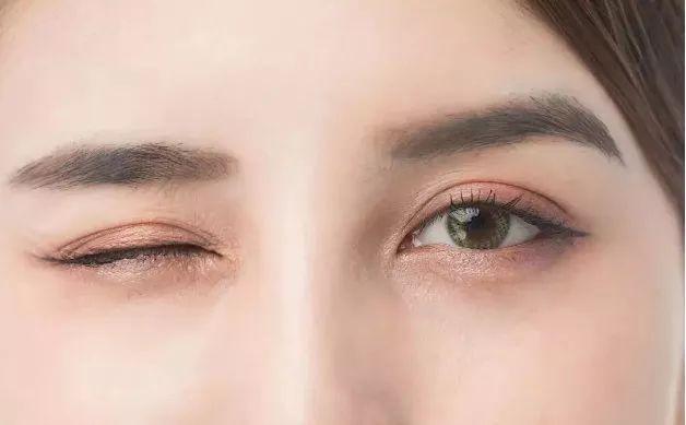 眼部整形——重塑心灵之窗