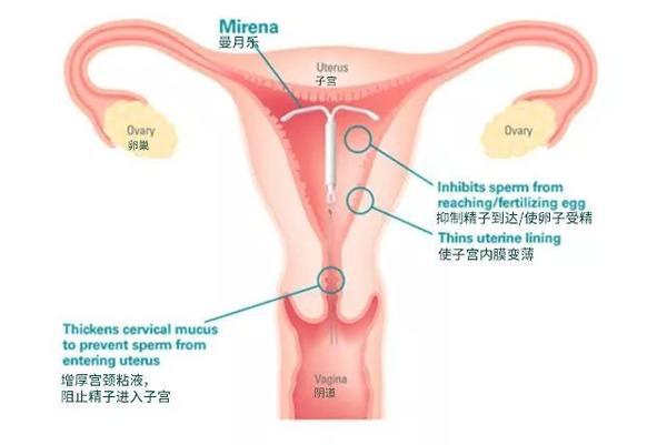 案例详解:曼月乐,达菲林对于腺肌症的现实作用