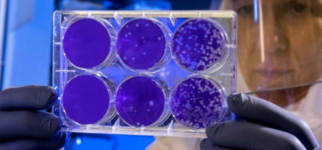 什么是海拉细胞,为什么被癌症诅咒的不死细胞