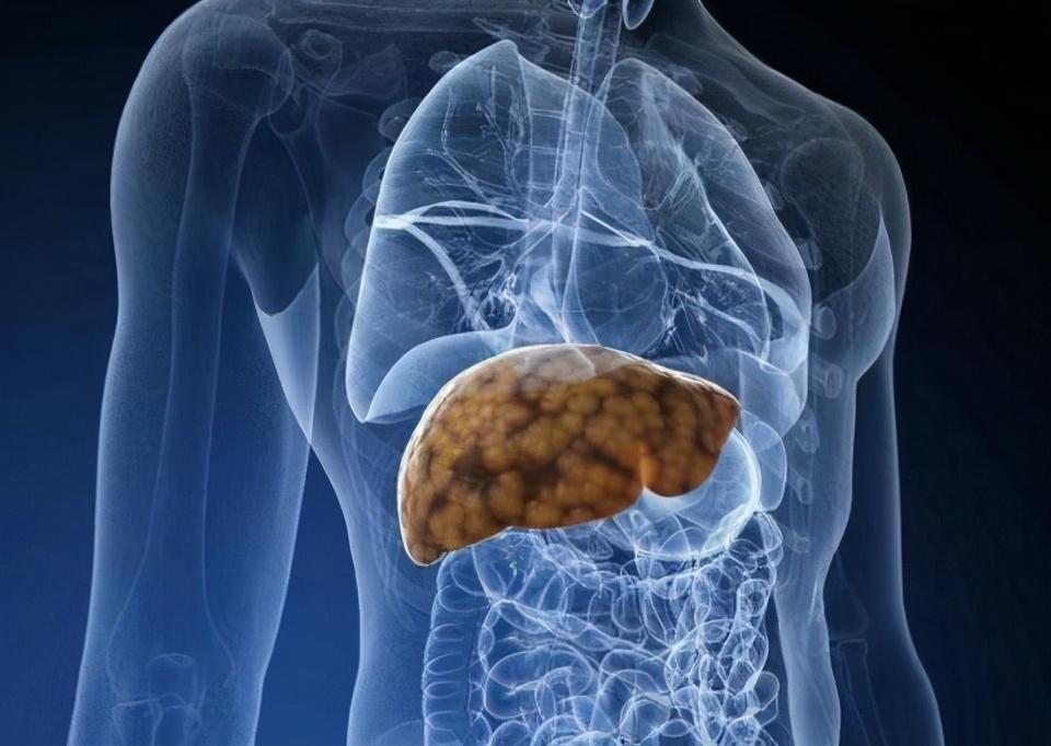 肝病治療有偏方? 醫生:治肝藥亂用危害大,治療需遵循這5大原則