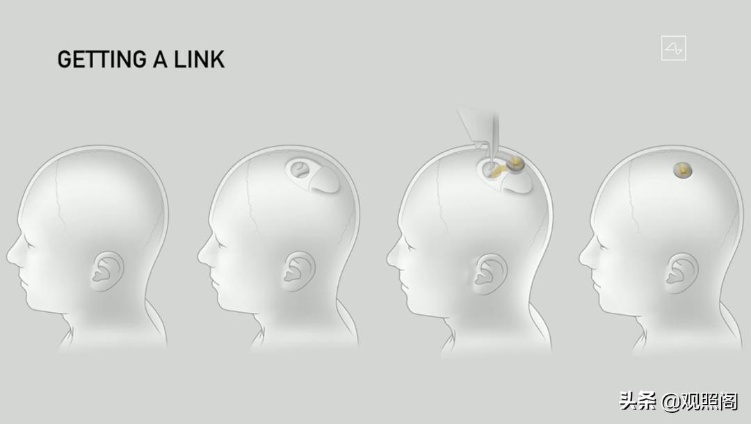 马斯克和三只猪开了场发布会:人类将实现脑机接口,和AI共生