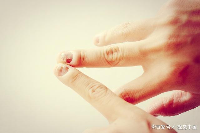 灰指甲放任不管会怎样?