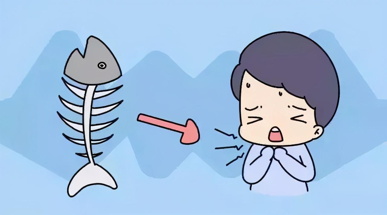 一个月拔500根鱼刺!富阳阿姨开胸取刺才保住命,都怪一碗酸菜鱼!