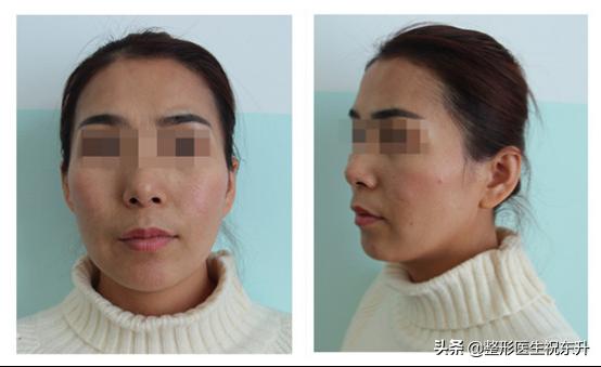 体验日记 | 自体脂肪填充面部,术后6个月效果反馈